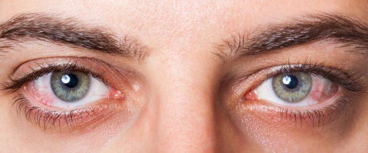 أهم الاسئلة حول صحة العين